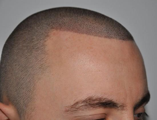 Hair tattoo - Scalp micropigmentation to make your bald patches look ...
