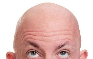 Is hair transplant for you?