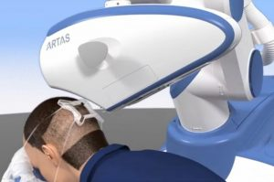 ARTAS robotic hair transplant UK cost