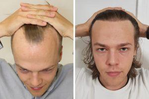 Receding hairline treatment UK costs