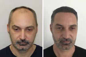 Hair loss at vertex treatment in the UK