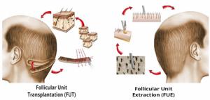 FUT vs FUE hair transplant procedure