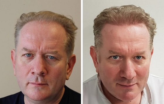 Hair transplant of 2000 grafts - before and after image